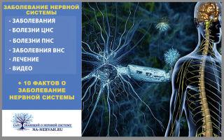 Заболевания нервной системы + 10 фактов и видео