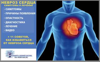 Невроз сердца симптомы и лечение +11 ценных советов